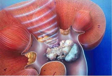 Litotricia extracorpórea