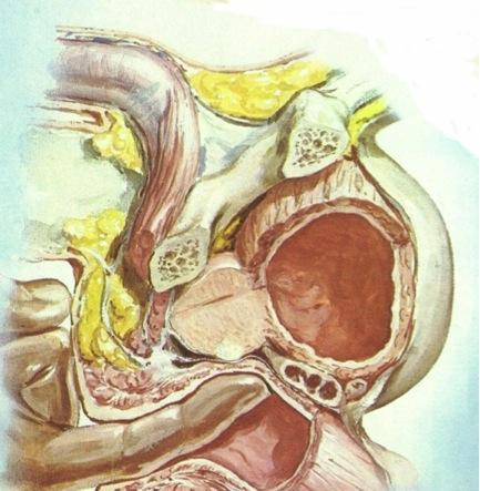 Tacto rectal en cáncer de próstata