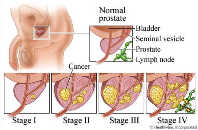 Etapas clínicas del cáncer de próstata
