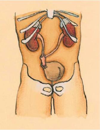 Neovejiga ortotopica