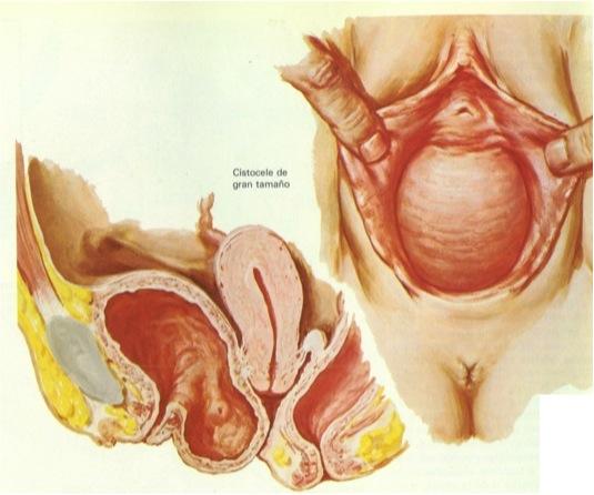 sintomas de un prolapso de vejiga